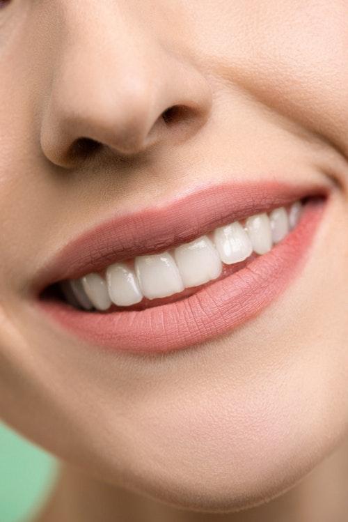 bio-smile-recensioni